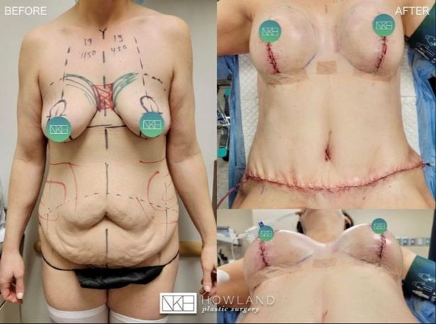 The operation takes around seven hours and often includes a tummy tuck and lift, breast augmentation and liposuction