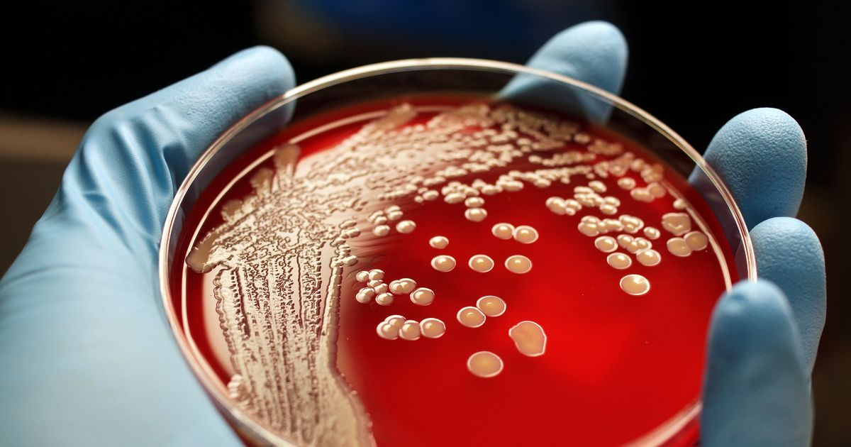 "Winter superbug viruses kill patients but ""families don't even know"""