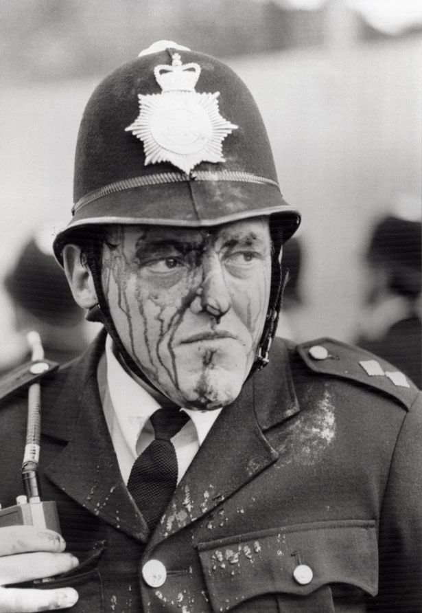 A bloodied inspector Dennis Bell, injured by a flying brick during riots