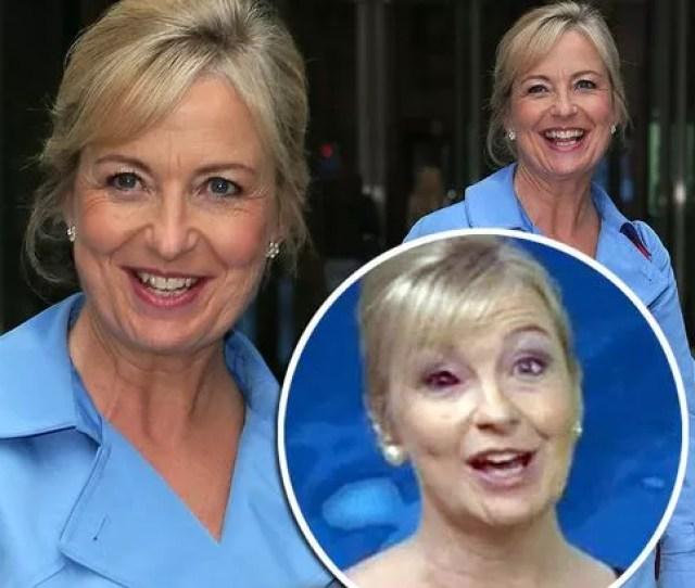 Carol Kirkwood Is Losing Her Vision