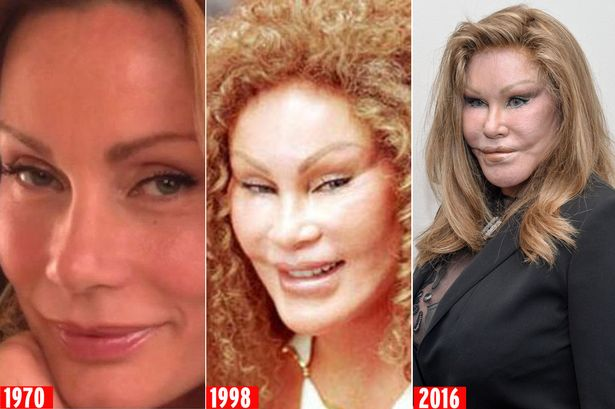 Image result for jocelyn wildenstein gallery
