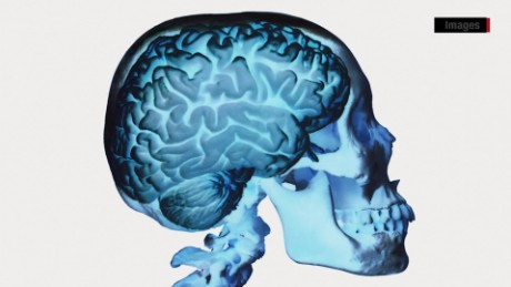 Inflammation in the brain linked to CTE