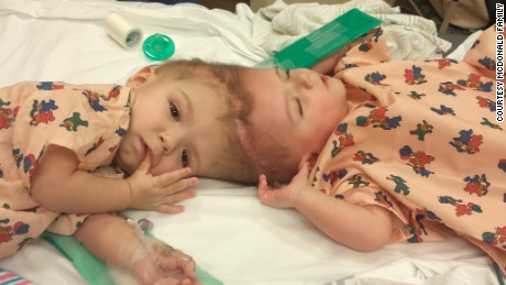 New life, apart: Conjoined twins separated in marathon surgery
