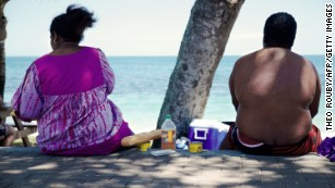 Why are these countries the most obese? Walking is just one reason