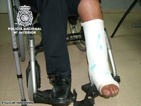 Police say the leg cast was made out of cocaine.