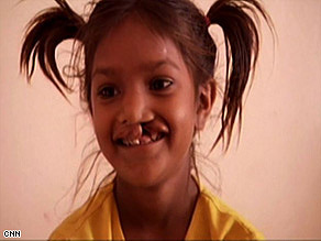 Pinki, like millions in developing countries, had to live with her deformity and suffer the social consequences.