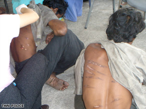 Male refugees show scars they say were caused by beatings at the hands of the Myanmar navy.