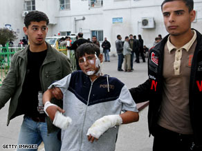 A burned Palestinian boy is helped as he leaves Kamal Adwan hospital in Gaza on Sunday.