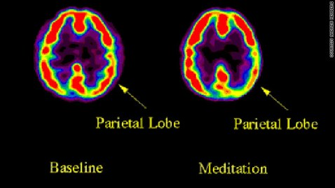 Image result for meditation brain changes images
