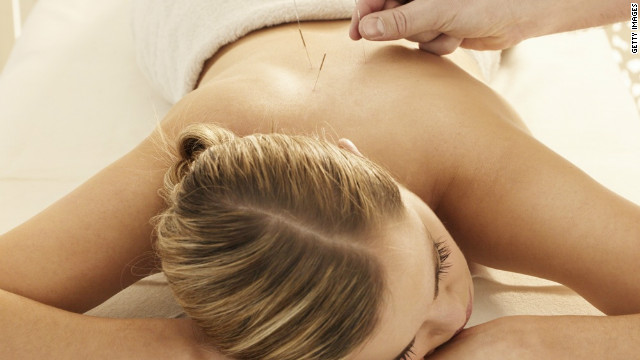 Acupuncture relieves pain, studies show, but some believe it's partly a