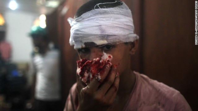 An injured youth is seen at a makeshift hospital in Cairo on August 14.