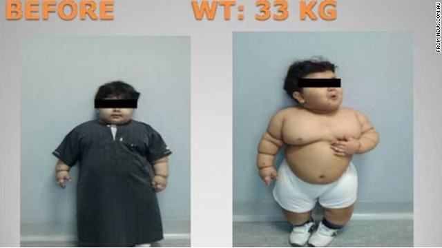 The two-year-old Saudi patient is seen here before bariatric surgery to reduce his weight.
