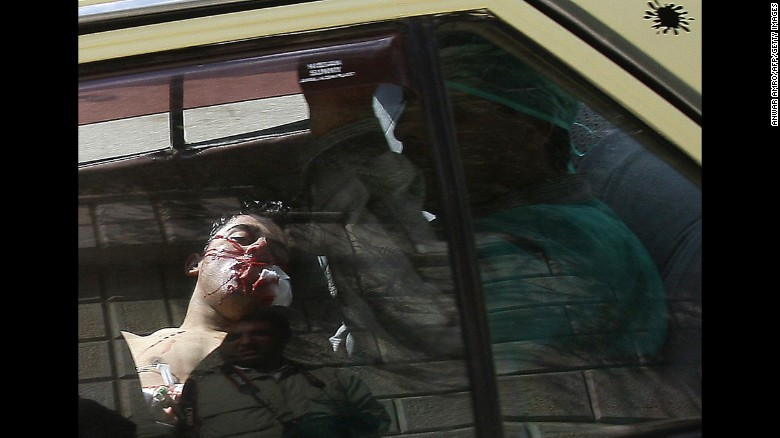 An injured man lying in the back of a vehicle is rushed to a hospital in Daraa, south of Damascus, on March 23, 2011. Violence flared in Daraa after a group of teens and children were arrested for writing political graffiti. Dozens of people were killed when security forces cracked down on demonstrations.