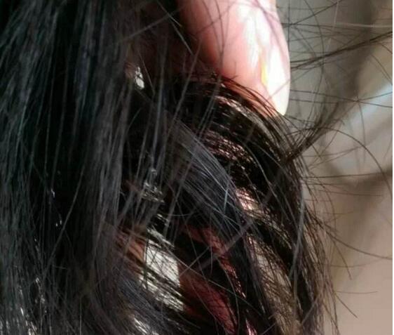 頭髮出油厲害,是身體什麼的信號? - 每日頭條