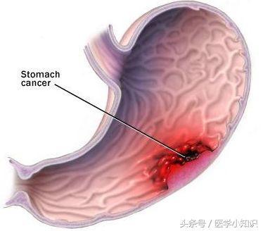 警惕胃癌早期癥狀及生活中應如何預防 - 每日頭條