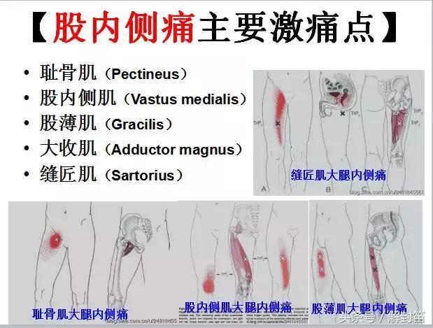 最新 肩 甲骨 激痛 右 - すべての人気の壁紙
