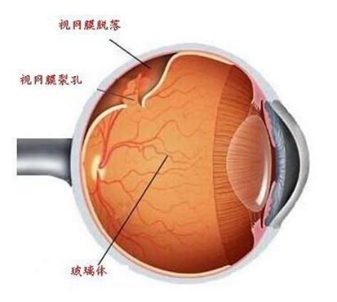 高度近視引諸多眼部併發癥:我們該怎麼辦? - 每日頭條