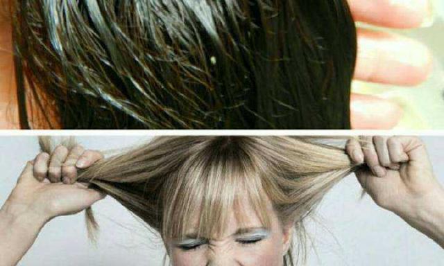 頭髮容易出油是什麼原因?如何緩解 - 每日頭條