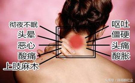 最全頸椎病癥狀詳細參照,看看你中了哪一條? - 每日頭條
