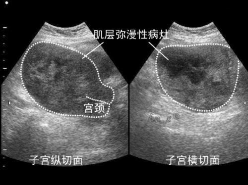 子宮內膜癌的臨床表現 - 每日頭條