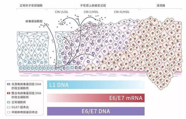 HPV檢測和癌:E6/E7能否改變模式? - 每日頭條