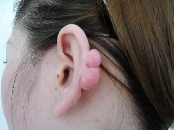 打耳洞長了瘢痕疙瘩怎麼治療? - 每日頭條