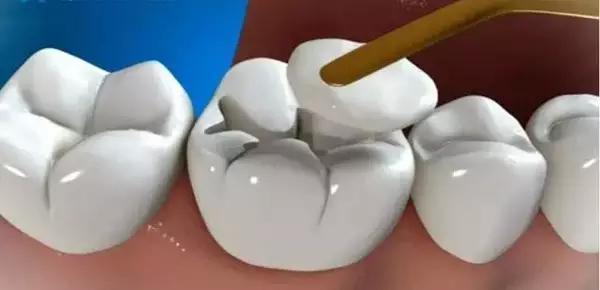 原來是這麼補牙的!--圖解補牙全過程 - 每日頭條