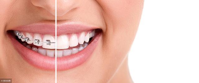 成年人還能做牙齒矯正嗎?牙齒矯正什麼年齡比較好? - 每日頭條