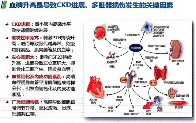 「BPF2018」陳靖:血磷控制在CKD-MBD管理中的地位 - 每日頭條