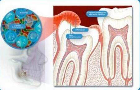 為什麼牙醫都喜歡拔智齒? - 每日頭條