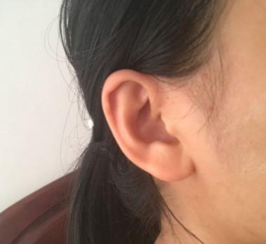 耳朵有這種特徵的人千萬注意了!預示身體有疾病纏身 - 每日頭條