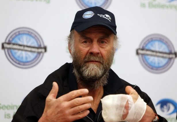 Image result for ranulph fiennes hands