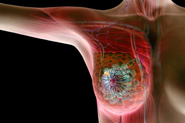 Image result for Irish scientists make breakthrough on aggressive breast cancer with new drug