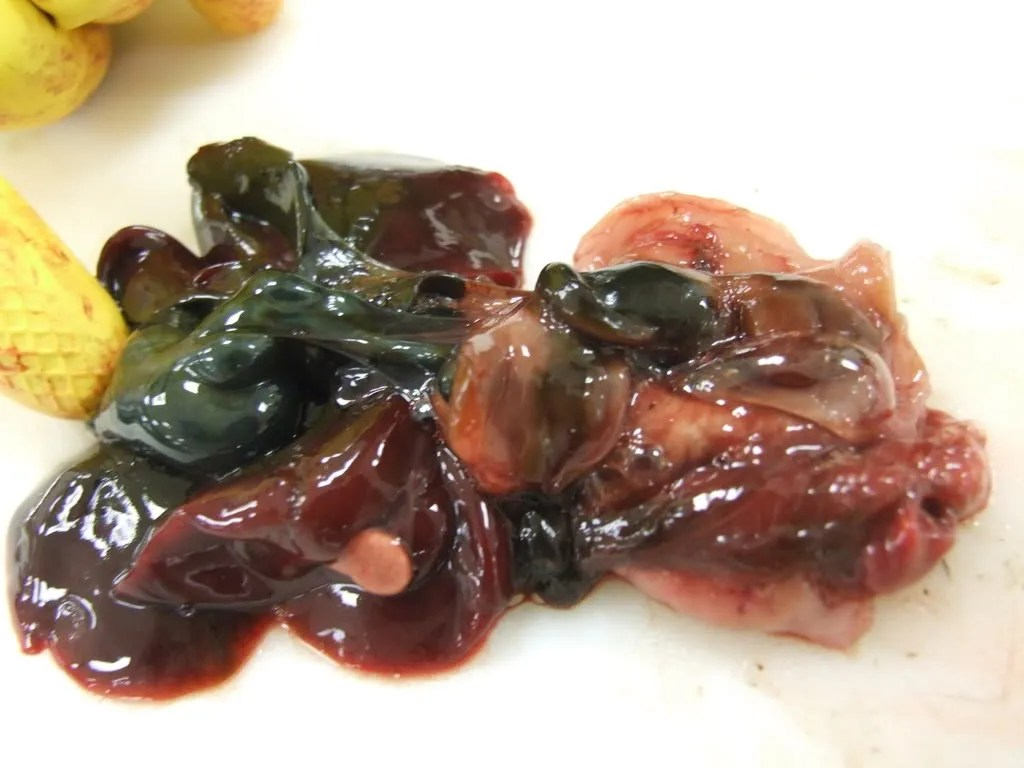Mucosa of the duodenum.  The bile duct (green) can be seen through the mucosa, but no opening is present