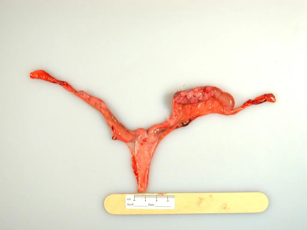 Uterus and uterine horns: One horn is enlarged with a transmural mass