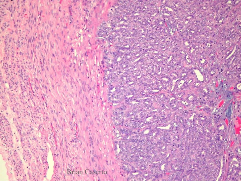 Uterine wall: The myometrium is invaded by a neoplasm forming acini (neoplastic endometrial glands)