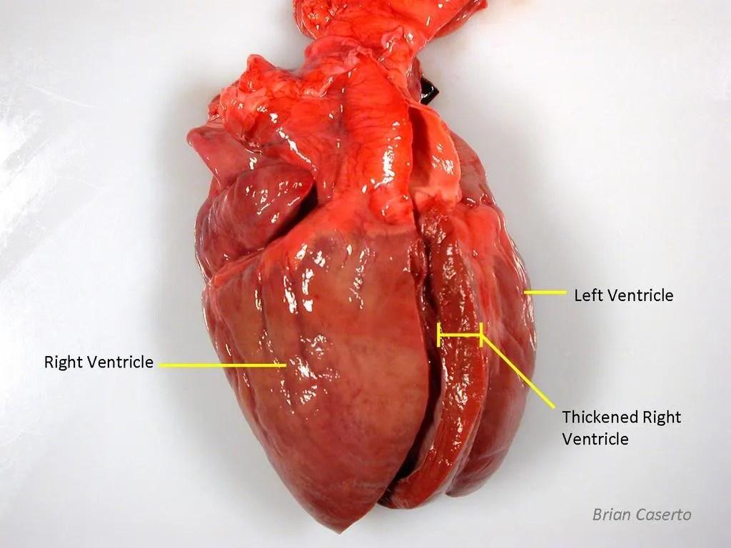 Right ventricular enlargement