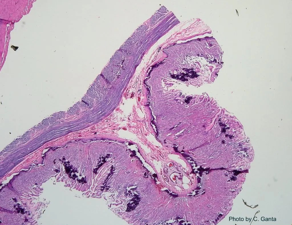 Stomach- the mucosa in diffusely mineralized