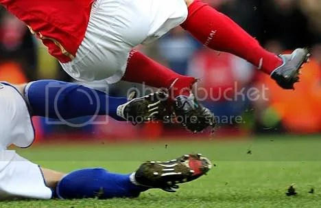 No one can even THINK to DEBATE ABOUT SAFETY other than eduardos ankle that is