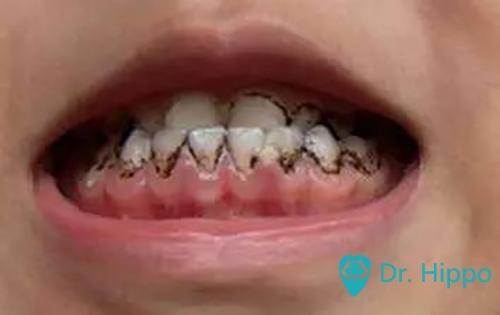 寶寶牙齒上的黑色素該怎麼處理? - 壹讀