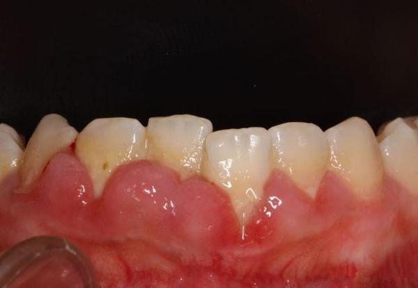 牙齦上火會長膿包嗎?別把小小膿包看得如此簡單! - 壹讀