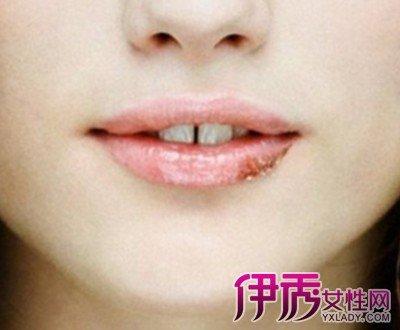 嘴唇長皰疹圖片大全 有哪些治療方法及注意事項 - 壹讀