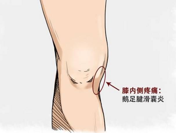 膝蓋內側疼痛怎麼辦? - 壹讀
