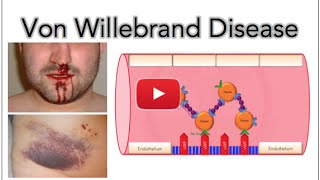 von Willebrand disease - Platelet adhesion and aggregation