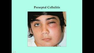 Preseptal Cellulitis and Orbital Cellulitis