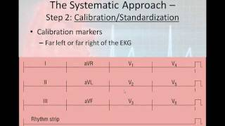 12 Lead EKG Interpretation - PART 2 (6 Step Interpretation Process)