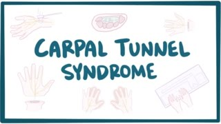 Carpal tunnel syndrome - causes, symptoms, diagnosis, treatment & pathology