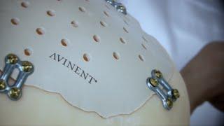 AVINENT - 3D Printing Technologies & Healthcare
