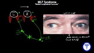 MLF syndrome - Internuclear Ophthalmoplegia