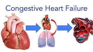 What is Congestive Heart Failure (CHF)?